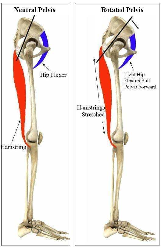 hip flexor troubles from strolling